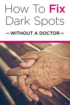 See How You Can Remove Dark Spots From Home