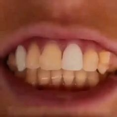 Research of mouth area microorganisms discovers which antibacterial toothpaste and mouthwash along with important natural oils function fa. Foot Detox Soak, Teeth Health, Natural Teeth Whitening, Mouthwash, White Teeth, Teeth Cleaning, Healthy Tips, Beauty Hacks, Remedies