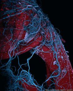 9º - Mark A. Sanders, de la Universidad de Minnesota (EE.UU). Imagen de un insecto envuelto en telaraña.