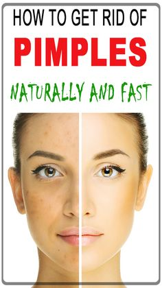 Pimples are the most annoying for a lot of reasons, they are painful and it's even worse. But If you are having a blind pimple they can be more painful than other pimples. Because the blind pimple is acne that has developed under the surface of the skin. Get Rid Of Warts, How To Get Rid Of Pimples, Remove Warts, Warts On Hands, Warts On Face, Blind Pimple, What Causes Warts, Flat Warts, Skin Burns
