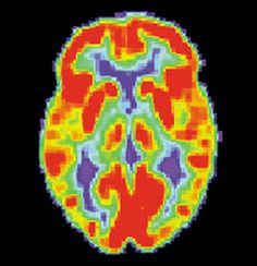 Brain Thermography