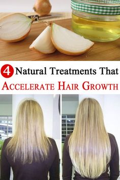 Getting regular trims to snip splits won't make your hair actually grow faster! Here are the best 3 natural treatments that guarantee to accelerate hair growth.