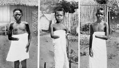 Under King Leopold II, the state of Belgium murdered 10 million Africans in Congo. As retaliation against communities that had not met their quota in rubber, Belgium workers cut off the hands of adults and children. Congo Belga, Latina, Congo Free State, Rd Congo, King Leopold, Belgian Congo, Rare Historical Photos, Iconic Photos, African Diaspora
