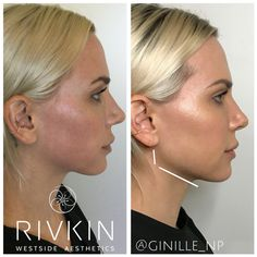 Natural V-shaped slimming mask Botox injections in Islamabad Non Surgical Jawline Enhancement, by becoming increasingly com .Non Surgical Jawline Enhancement, by becoming increasingly common for younger patients to want to enhance Nose Fillers, Facial Fillers, Botox Fillers, Dermal Fillers, Facial Aesthetics, Nasolabial Folds, Botox Injections, Jawline, Plastic Surgery