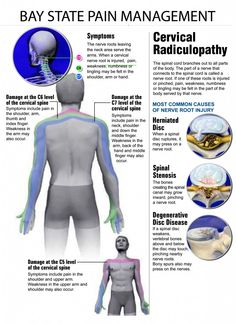 Cervical_Radiculopathy.pdf Chronic Pain, Fibromyalgia, Chronic Illness, Costochondritis, Cervical Spondylosis, Radiculopathy, Cluster Headaches, Degenerative Disc Disease, Neck And Back Pain