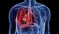 20 sinais de que você pode ter algum tipo de câncer crescendo em seu corpo
