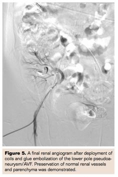 Flow-Arrest Interventional Repair of Renal Allograft Arteriovenous Fistula and Pseudoaneurysms | Vascular Disease Management Volume 11 Issue 3- March 2014