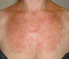 Аллергия на солнце - симптомы, лечение | Азбука здоровья