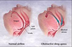 Natural Sleep Remedies Sleep Apnea and Dry Eye Syndrome Home Remedies For Snoring, Sleep Apnea Remedies, Insomnia Remedies, What Causes Sleep Apnea, Causes Of Sleep Apnea, Sleep Apnea Syndrome, Sjogren's Syndrome, Sleep Apnea In Children, Circadian Rhythm Sleep Disorder