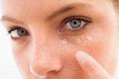 Hirudoid com hipoglos: mistura para apagar olheiras ensinada por médica de famosa