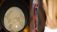 Have You Tried Garlic Milk? This is the Best Natural Remedy for Relieving Sciatic Pain! Here's how to prepare it… Sciatic Pain, Sciatica, Nutrition, Natural Medicine, Natural Remedies, Durer, Point, Healthy, Food