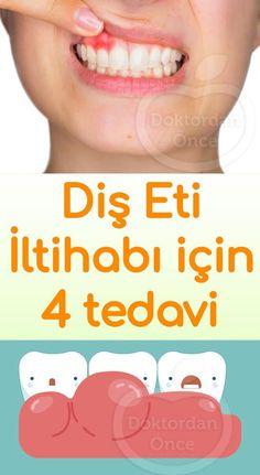 Oral Hygiene, Natural Treatments, Natural Medicine, Adolescence, Diet And Nutrition, Workout, Health Care, Medical, Weight Loss