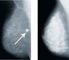 Dense breast tissue? Here's what you need to know.