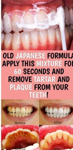 OLD JAPANESE FORMULA APPLY THIS MIXTURE FOR 60 SECONDS AND REMOVE TARTAR AND PLAQUE FROM YOUR TEETH!