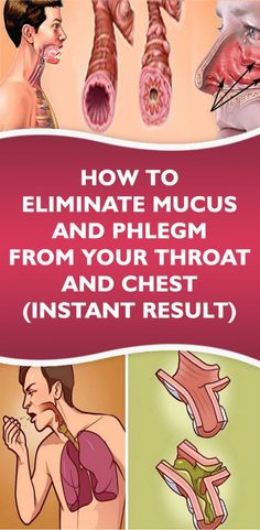How To Eliminate Mucus And Phlegm From Your Throat And Chest (Instant Result)