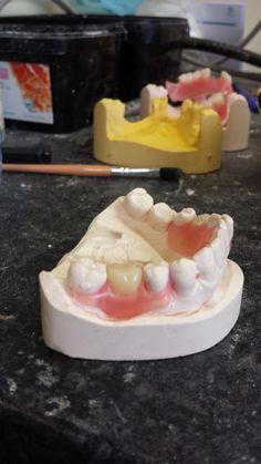 Dental Aesthetics, Dental Assistant, Plastic Material, Flexibility, Teeth, Desserts, Smile, Places, Food