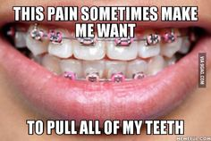 People with braces will understand me - 9GAG Braces Meme, Braces Food, Braces Tips, Dental Braces, Teeth Braces, Dental Care, Braces Problems, Braces Retainer, Getting Braces