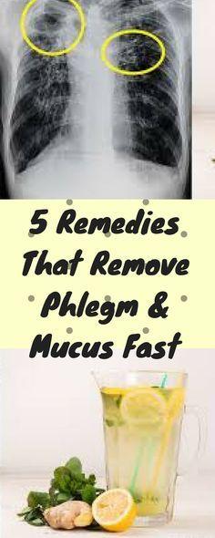 5-remedies-remove-phlegm-mucus-fast/