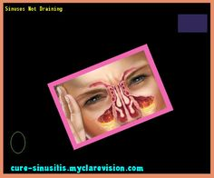 Sinuses Not Draining 085758 - Cure Sinusitis