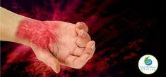 Essential Oils for Neuralgia and Neuropathy (nerve pain) natural beauty remedies Essential Oils For Pain, Young Living Essential Oils, Essential Oil Blends, Gum Inflammation, Gum Health, Oral Health, Dental Health, Health Care, Toenail Fungus Cure