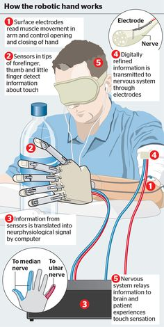 """Bionic hand gives amputee ability to have a """"lifelike"""" sense of touch."""