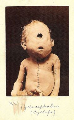 Morbidity Museum / Baby Cyclops ....................................