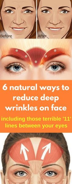 6 natural ways to reduce deep wrinkles on face - Workout Hit