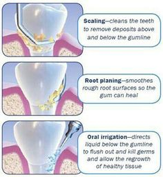 Scaling and root planing, non-surgical periodontal therapy, or deep cleaning, is the process of removing dental plaque and calculus from beneath the gums which causes inflammation. Dental Assistant Study, Dental Hygiene Student, Dental Humor, Dental Procedures, Dental Hygienist, Oral Hygiene, Oral Health, Dental Health, Instrumental