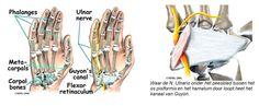 nervus ulnaris guyon - Google Search