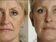 Restylane Laugh Line Filling Before and After Results Best Wrinkle Filler, Beauty Care, Hair Beauty, Les Rides, Younger Skin, Lip Fillers, Ingrown Hair, Natural Cosmetics, Best Face Products
