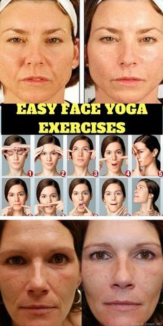 Face Yoga Exercises for a Healthy Glow - Firstly, it's hailed as a non-invasive alternative to Botox and surgery, but how exactly will doing facial exercises help banish fine lines, sagging and wrinkles? - Try these yoga exercises for a healthier face Visage Plus Mince, Acne On Nose, Motivation Yoga, Motivation Quotes, Face Yoga Exercises, Jowl Exercises, Do Facial Exercises Work, Lose Weight In Your Face, Botox Alternative