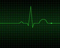 What Exactly Is an Electrocardiogram? An electrocardiogram (EKG or ECG) is a test that checks for difficulties with the electric activity of your heart. An ECG translates the heart's electrical. Medical Humor, Medical Science, Nurse Humor, Nursing School Tips, Nursing Tips, Nursing Schools, Ekg Interpretation, Critical Care Nursing, Cardiac Nursing