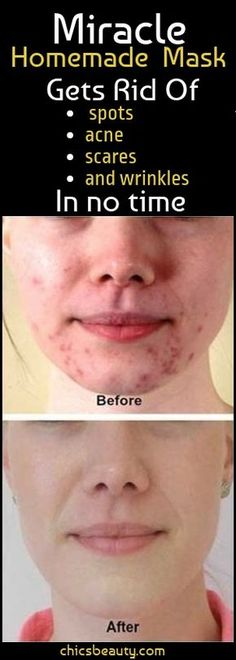 This is an amazing face mask that will help you eliminate the stains the wrinkles and the acne scars. Frequently the healing procedures of acne and pimples on the face end up in remains in the form of dark scars and spots. This is why we need an alterna Get Rid Of Spots, Remover Manchas, Acne And Pimples, Face Mask For Pimples, Acne Face Mask, Remove Pimple Scars, Small Pimples On Face, How To Get Rid Of Pimples, Reasons For Pimples