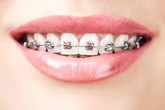 In Singapore, dental braces are a form of orthodontic procedure used to straighten your teeth. Braces are used to treat two specific dental conditions, malocclusion and bite misalignment. Dental Braces, Teeth Braces, Dental Surgery, Dental Care, Gold Braces, Dental Logo, Dental Teeth, Teeth Implants, Dental Implants