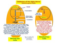 coloboma of the eye   Coloboma of the optic nerve and other ocular anomalies may result from ...