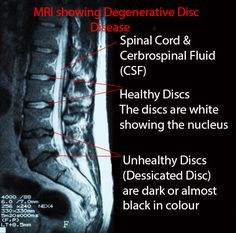 how to fix t5 tot t8 spinal disk