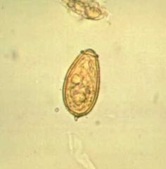 Operculated eggs seen on stool O&P with Clonorchis sinensis