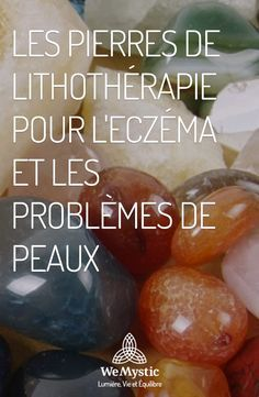 Eliminates Psoriasis in 7 Days Spirit Yoga, How To Treat Eczema, Like A Rolling Stone, Miracle Morning, Reflexology, Science And Nature, Stones And Crystals, Self Help, Reiki