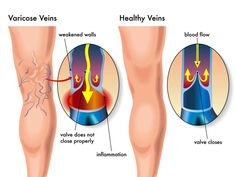 Varicose veins are now one of the most common medical problems that affect very large number of people.Here is a natural way to get rid of varicose veins fast and safe.