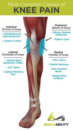 Do you or does someone you know have knee pain? The first step to relieving knee pain is knowing EXACTLY where your pain is! Anterior (front) posterior (back) lateral (outside) and medial (inside) knee pain are the four most common areas of knee injuri Mcl Injury, Knee Ligament Injury, Baker's Cyst, Knee Pain Exercises, Knee Physical Therapy Exercises, Physical Exercise, Patellar Tendonitis Exercises, Iliotibial Band Stretches, Knee Tendonitis