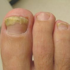 this will come in handy if i know someone with fungus. Effective Natural Treatment For Toenail Fungus