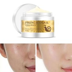 Health Snail Face Cream Hyaluronic Acid Moisturizer Anti Wrinkle Aging Cream for Face Nourishing Serum Day Cream for Face Hyaluronic Acid Moisturizer, Eye Cream For Dark Circles, Best Anti Aging Creams, Shrink Pores, Skin Care Cream, Skin Problems, Anti Wrinkle, Face Skin, Collagen