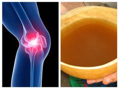 Arthritis Remedies, Good To Know, Lava Lamp, Neon Signs, Health, Decor, Fitness, Allergies, Decoration