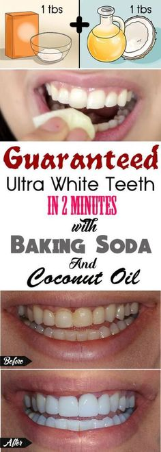 Guaranteed ultra-white teeth in 2 minutes with baking soda