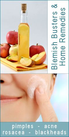 This is a great site for so many things.  Today they give recipes on Blemish Busters & Home Remedies for everything from acne to rosacea and blackheads.