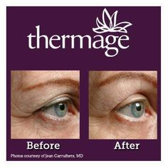 Not getting the results you want from creams? Ask your doctor how Thermage® can help iron out periorbital wrinkles. http://www.thermage.com