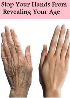 It doesnt matter if your skin is young, while your hands can denouce your real age