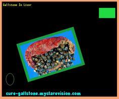 Gallstone In Liver 154610 - Cure Gallstone