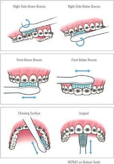 Video shows 3 best ways to remove teeth plaque or tartar at home without visiting a dentist for your dental cleaning. Remedies For Strong and White Teeth: ht. Braces Food, Braces Tips, Dental Braces, Teeth Braces, Dental Care, Kids Braces, Braces Smile, Teeth Dentist, Gold Braces