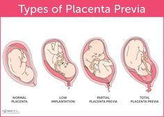 Types of Placenta Previa